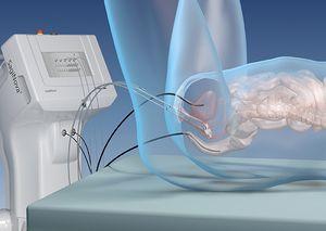 Set for In-vivo-Dosimetry, integrated | In-Vivo Dosimetry | Dosimetry |  Eckert & Ziegler BEBIG HDR | HDR Catalog | Eckert & Ziegler BEBIG shop  system